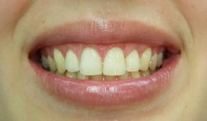 Cosmetic Gingival Contouring Case 1 After