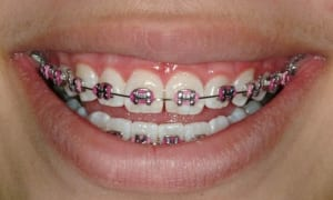 Cosmetic Gingival Contouring Case 2 after