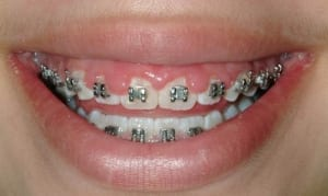 Cosmetic Gingival Contouring Case 2 before