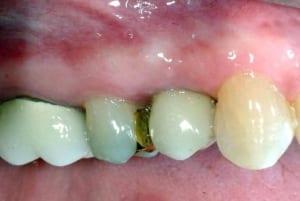Dental Implants Case 1 After