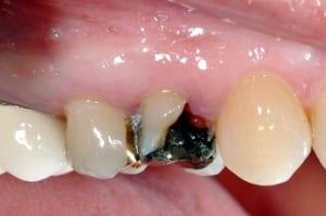 Dental Implants Case 1 Before