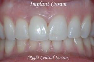 Dental Implants Case 3 After