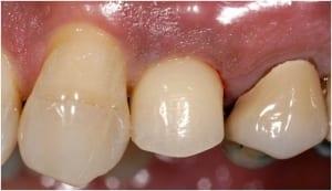 Dental Implants Case 4 After