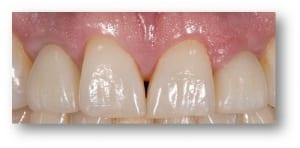 Dental Implants Case 5 After