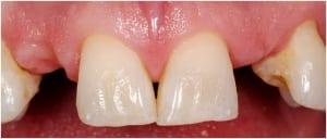 Dental Implants Case 5 Before