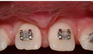 Frenectomy Case 1 Before