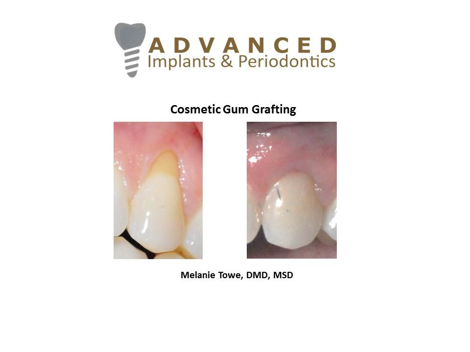 Cosmetic Gum Grafting